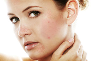 Treatment Of Acne Is One Of The Amazing Benefits Of Turmeric For Skin